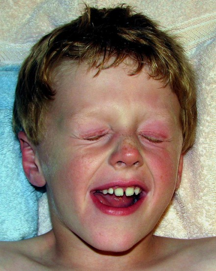 allergia gyerekeknél
